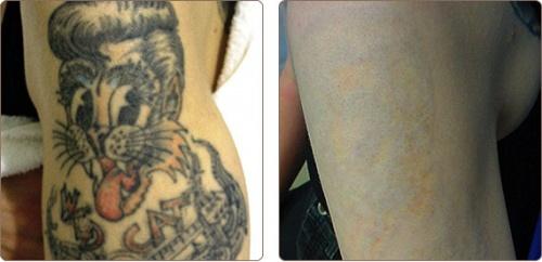 Fjernetatovering med laser før og etter bilde